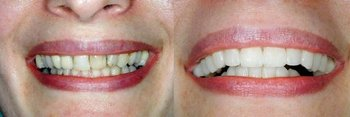 Smile Gallery - Baker Hill Dental, Glen Ellyn Dentist