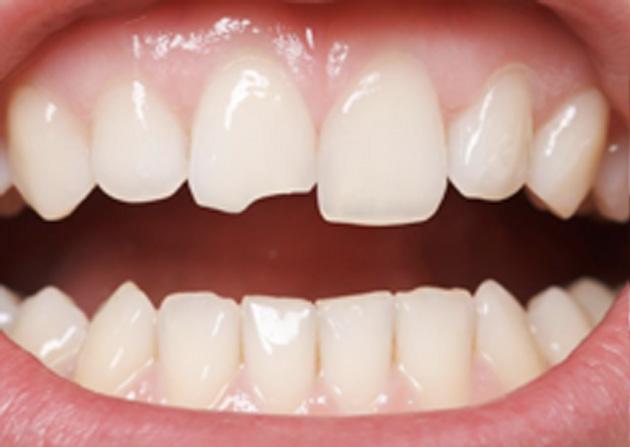 Cosmetic Bonding  - Baker Hill Dental, Glen Ellyn Dentist