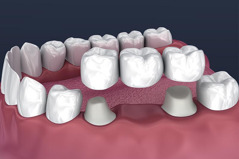 Crowns and Bridges, Inlays and Onlays  - Baker Hill Dental, Glen Ellyn Dentist