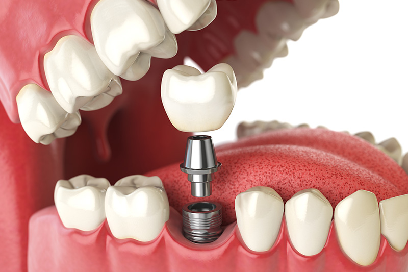Dental Implants - Baker Hill Dental, Glen Ellyn Dentist