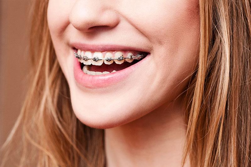 Orthodontics - Baker Hill Dental, Glen Ellyn Dentist