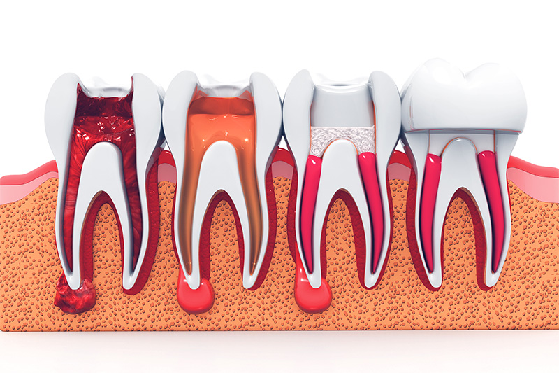 Root Canal Therapy  - Baker Hill Dental, Glen Ellyn Dentist