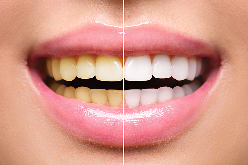 Teeth Whitening - Baker Hill Dental, Glen Ellyn Dentist