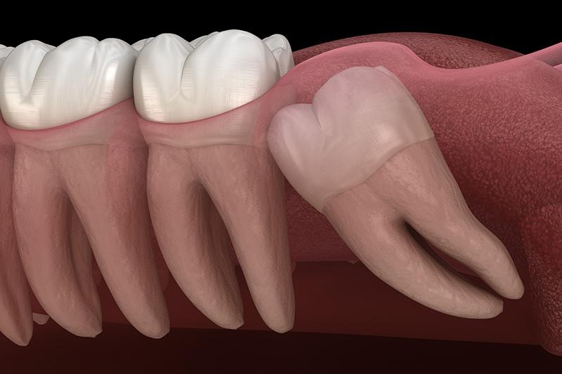 Wisdom Teeth Extractions (with Sedation)  - Baker Hill Dental, Glen Ellyn Dentist