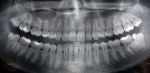 Baker Hill Dental